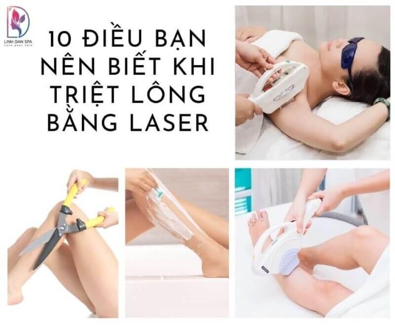 10 dieu ban can biet ve triet long laser